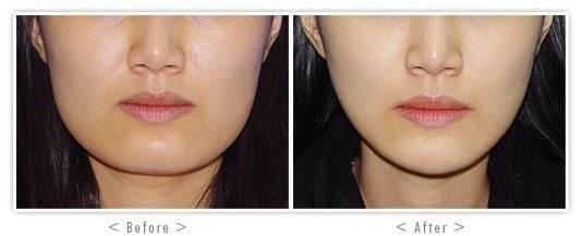 青岛伊美尔国宾整形外科医院下颌角整形,让我锐变变美