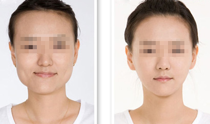 上海华美医疗美容医院下颌角整形,整形让我拥有瓜子脸