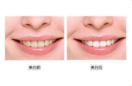 北京美伊国际牙齿美白成功案例