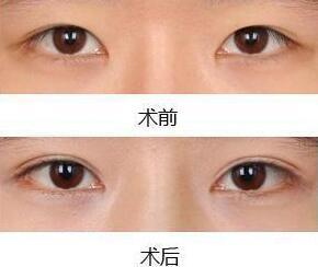 北京雅靓eps翘睫双眼皮成功案例