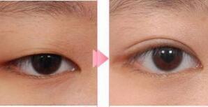 哈尔滨超龙定位双眼皮手术成功案例