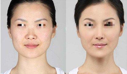 重庆医科大学附属口腔玻尿酸注射成功案例