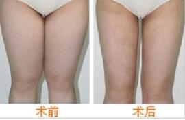 黑龍江省醫院全身吸脂塑形成功案例