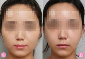 大庆和美家注射瘦脸成功案例