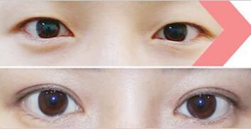 天津奥薇和谐面部轮廓手术双眼皮手术成功案例