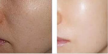 天津奥薇和谐水光注射美白手术成功案例