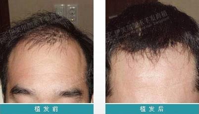 亳州缔美头发种植成功案例