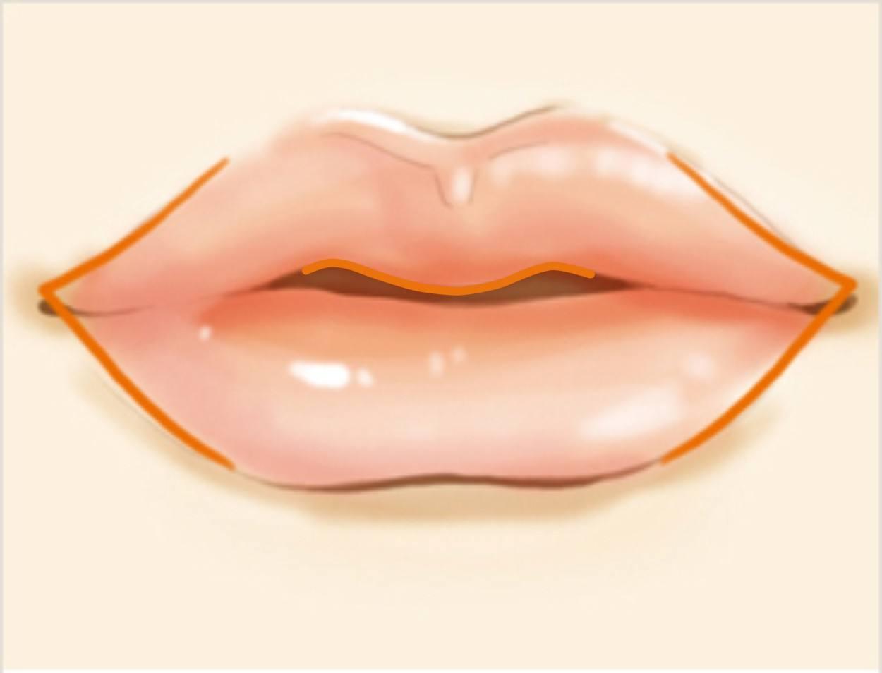薄唇增厚术有哪几种手术
