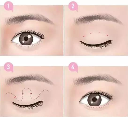 埋线双眼皮可以保持多久呢