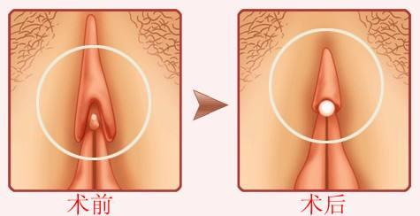阴蒂肥大缩小有哪些方法呢