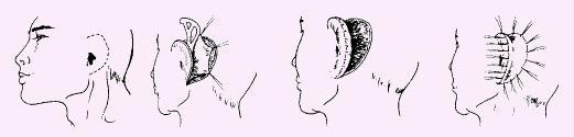 耳部再造的效果自然吗