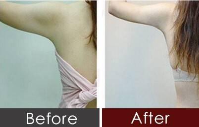 沈阳杏林手臂吸脂几天可以恢复