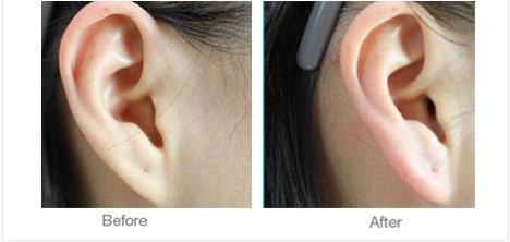 自体脂肪耳垂加大会反弹吗