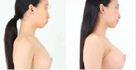 昆明前卫美眼自体脂肪隆胸成功案例