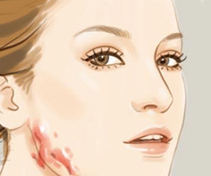 做植皮手术有风险吗