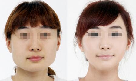 亳州华美瘦脸针成功案例