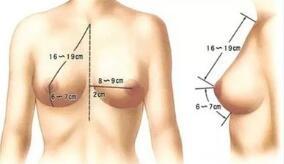青岛诺德乳房下垂矫正的方法适用于巨乳吗