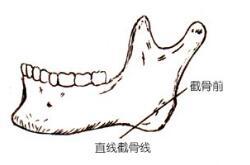 青岛诺德下颌角整形后会出现后遗症吗