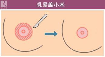 乳头乳晕缩小手术如何