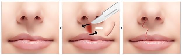 唇腭裂二期修复的年龄一般是多少岁