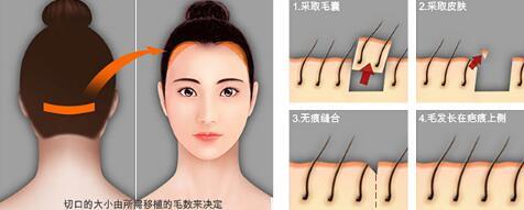 沈阳杏林头发种植手术前有哪些注意事项
