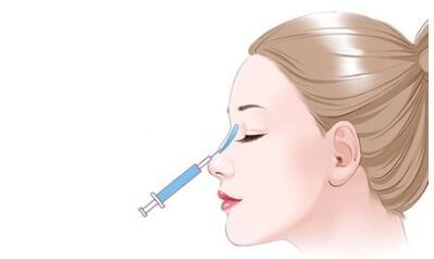 武汉玻尿酸隆鼻一般能维持多长时间