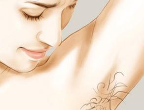 激光祛除腋臭会反弹吗