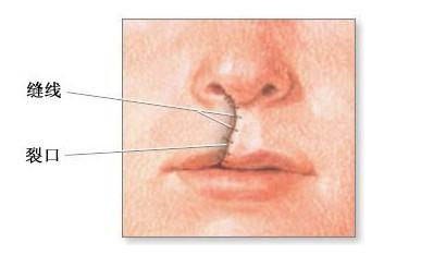 唇裂修复手术大概多久恢复