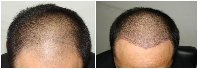 临汾丽都头发种植手术后多久才能看到效果