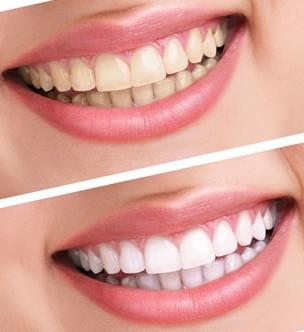 临汾丽都牙齿美白的效果可以维持多久
