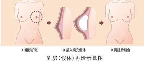 扩张法乳房再造有哪些副作用