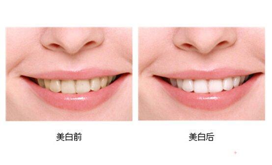 沈阳杏林牙齿美白适合哪些症状的人群