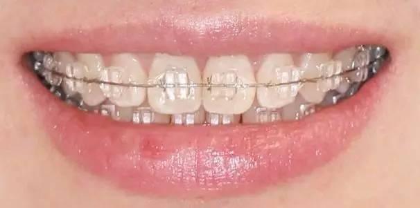 沈阳杏林牙齿矫正什么年龄段做比较好