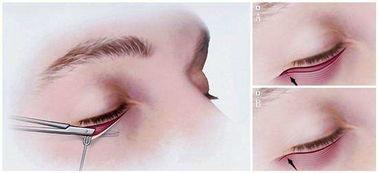 祛眼袋失败修复有哪些方法