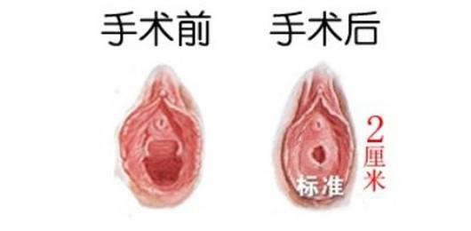 沈阳杏林处女膜修复术后多久可同房