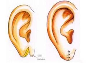 临汾丽都耳垂在造术有哪些方法