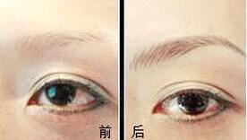 红河蒙自白天鹅半永久定妆成功案例