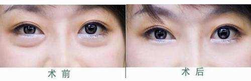 铜陵晶美祛眼袋成功案例