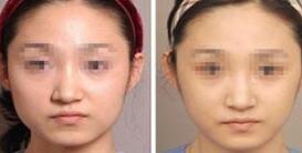 红河蒙自白天鹅微创V脸术成功案例