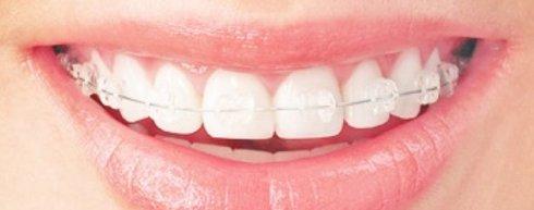 沈阳丽都牙齿矫正方法有哪些