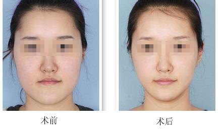 沈阳杏林瘦脸针成功案例