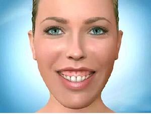 露龈笑整形术需要多久恢复时间