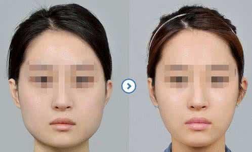 葫芦岛颐正下颌角整形要多久才能恢复