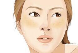 做激光祛斑需要注意防晒吗