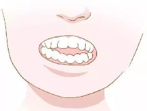 山西长治牙齿矫正有哪些方法