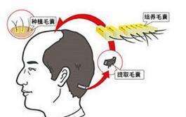 种植头发的危害大不大