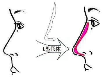 贵阳隆鼻术后多久可恢复自然