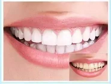 葫芦岛颐正牙齿美白有哪些方法