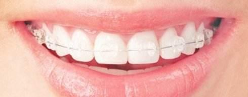 葫芦岛颐正牙齿矫正术后保持器佩戴多久