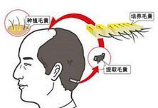 头发种植术后还会掉头发吗